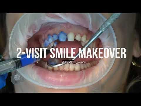 Porcelain Veneers - 2 Visit Smile Makeover By Dr. Bret Davis