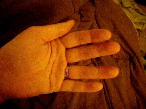fasciculations thumb