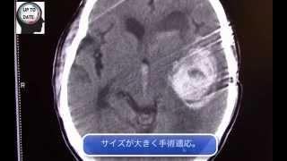 被殻出血の画像診断、手術適応、脳内出血【画像診断チャンネル】