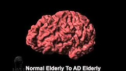 Cortical Atrophy Associated with Alzheimer's Disease