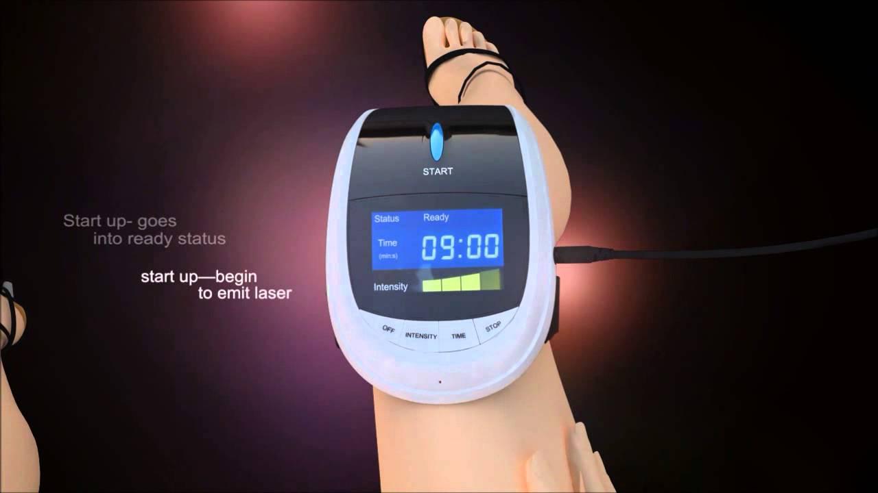 Лазерный аппарат для коленного сустава боль суставах отдающая пах