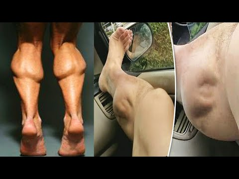 This Is Why my Legs Cramp at Night and OW TO FIX IT! Why Your Legs Cramp at Night