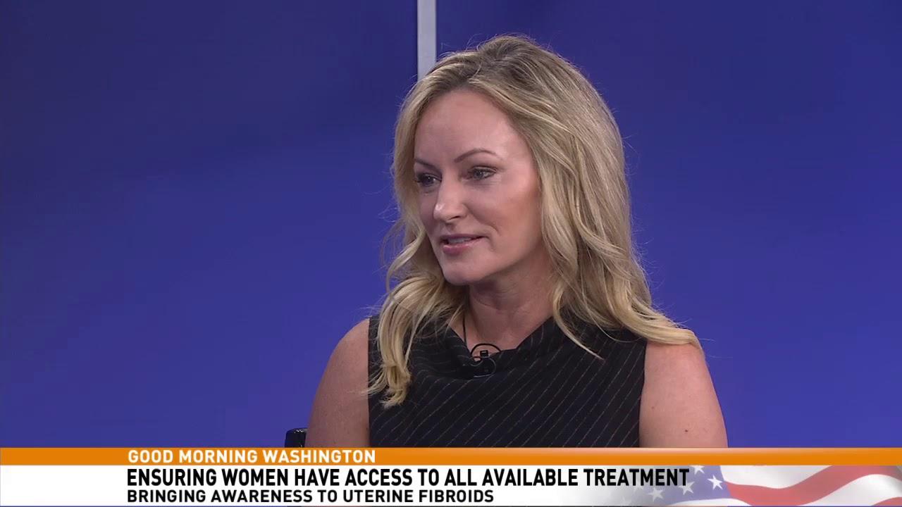Page 3 – Acessa Procedure | Best Fibroids Treatment Option