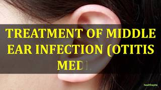 TREATMENT OF MIDDLE EAR INFECTION OTITIS MEDIA