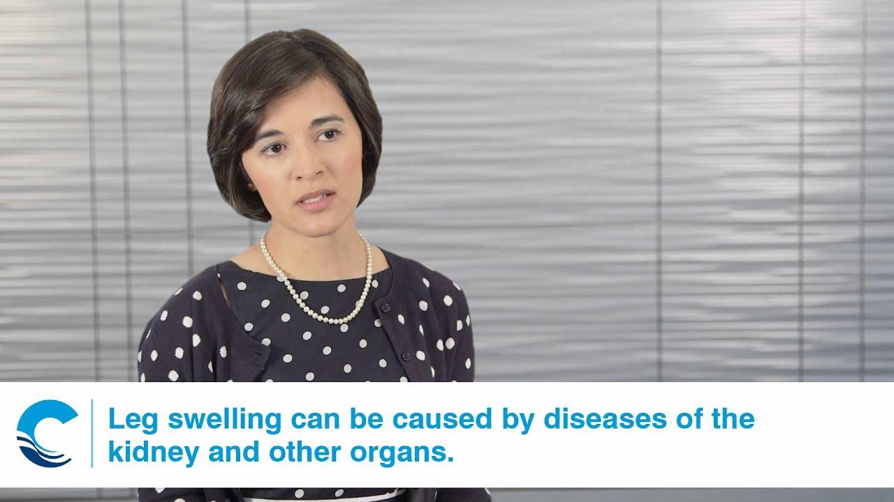 Confluence Health Tips Kidney Disease Leg Swelling Youtube