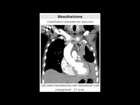 Mesothelioma – Location, Characteristics & Histology