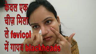 केवल ये एक चीज मिला ले fevicol में सारे blackheads होंगे गायब /क्या फेविकॉल ब्लैकहेड्स निकाल सकता है