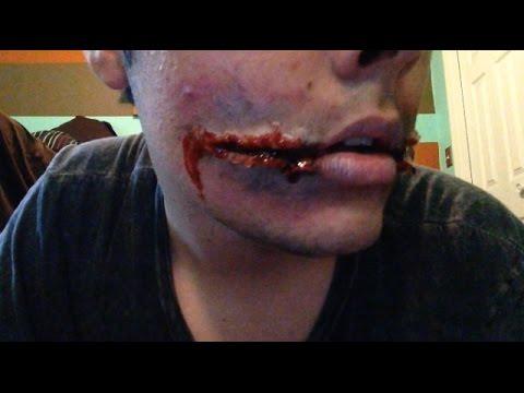 Split Corners Of Mouth 81