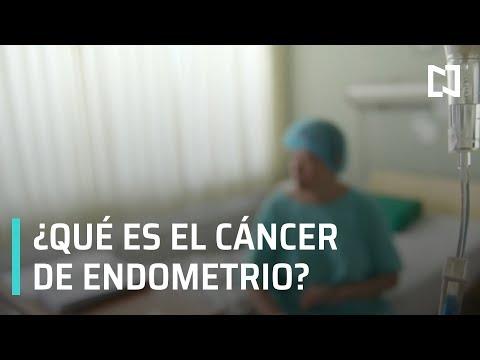 ¿Qué es el cáncer de Endometrio?   Cirugía de cáncer de Endometrio - Las Noticias