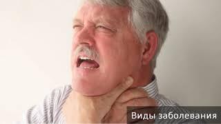 Анафилактический шок. Как лечить анафилактический шок.