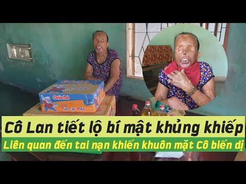Ai là người gây ra tội ác mà Cô Lan phải mất đi đôi mắt và sắc đẹp ? from YouTube · Duration:  22 minutes 18 seconds