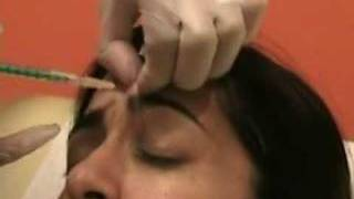 Learn about Botox injection- Upper face The Institute