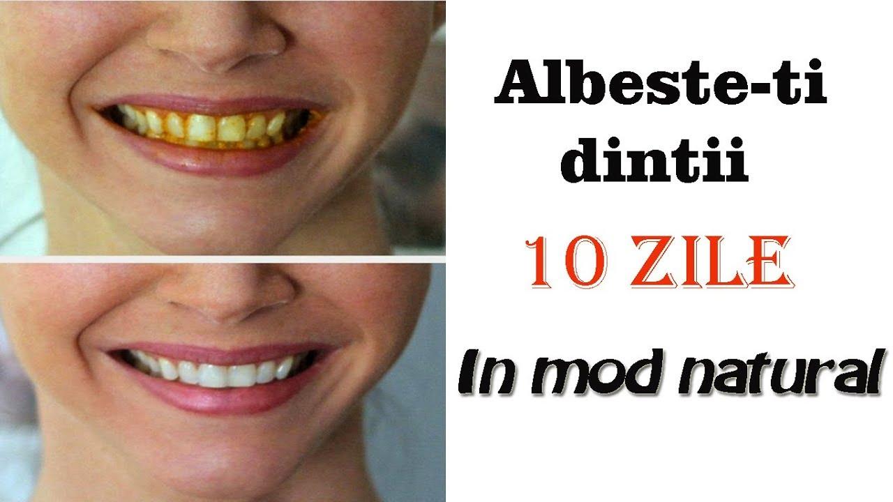 Albirea dintilor cu bicarbonat de sodiu si pasta de dinti