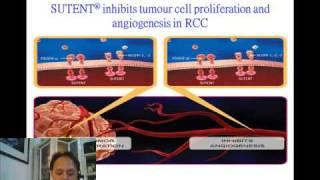 談Sutent 紓癌特用於RCC腎細胞癌 1 thumbnail