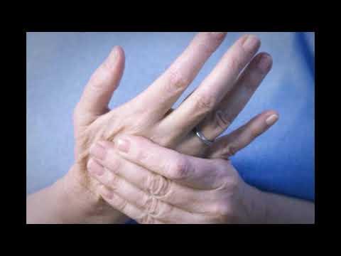 Ketahui 5 Ciri ciri dari PenyakitKetahui 5 Ciri ciri dari PenyakitSarafKetahui 5 Ciri ciri dari Peny.