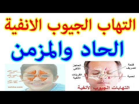 التهاب الجيوب الانفية الحاد والمزمن الاسباب الاعراض والعلاج Youtube