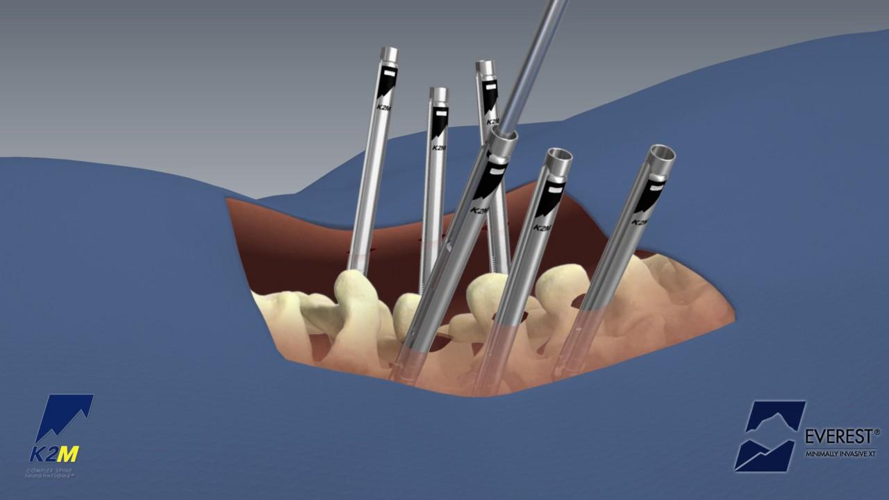 EVEREST® Minimally Invasive XT Spinal System Product Animation