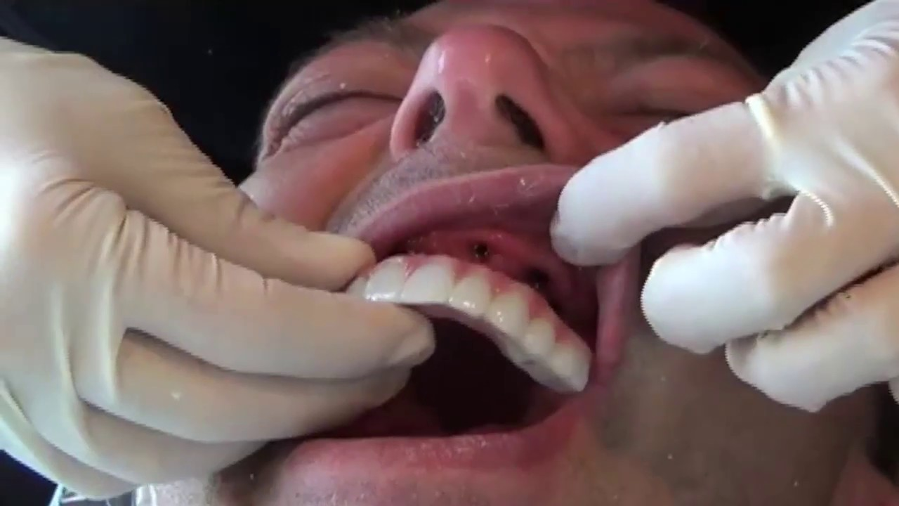 Denture Services and Dentures in Lexington, KY