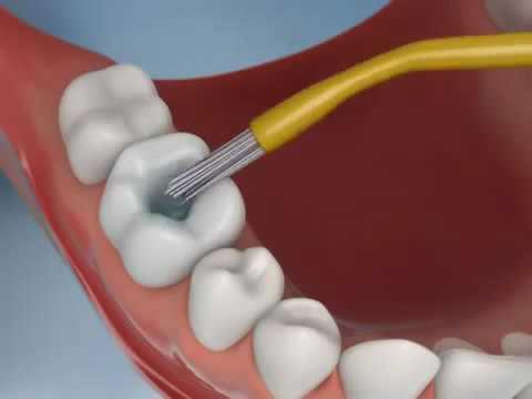 Зубные пломбы — какие лучшие? Обзор видов пломбировочных