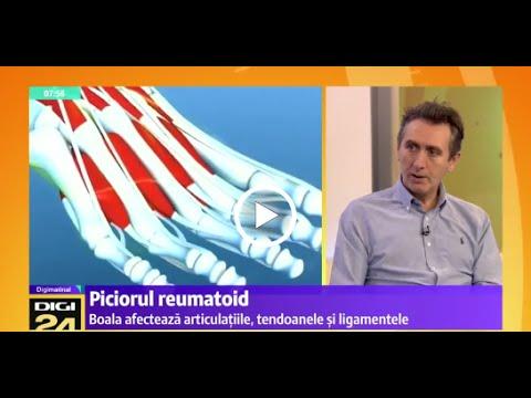 tratamentul articulației poliarteoartrozei
