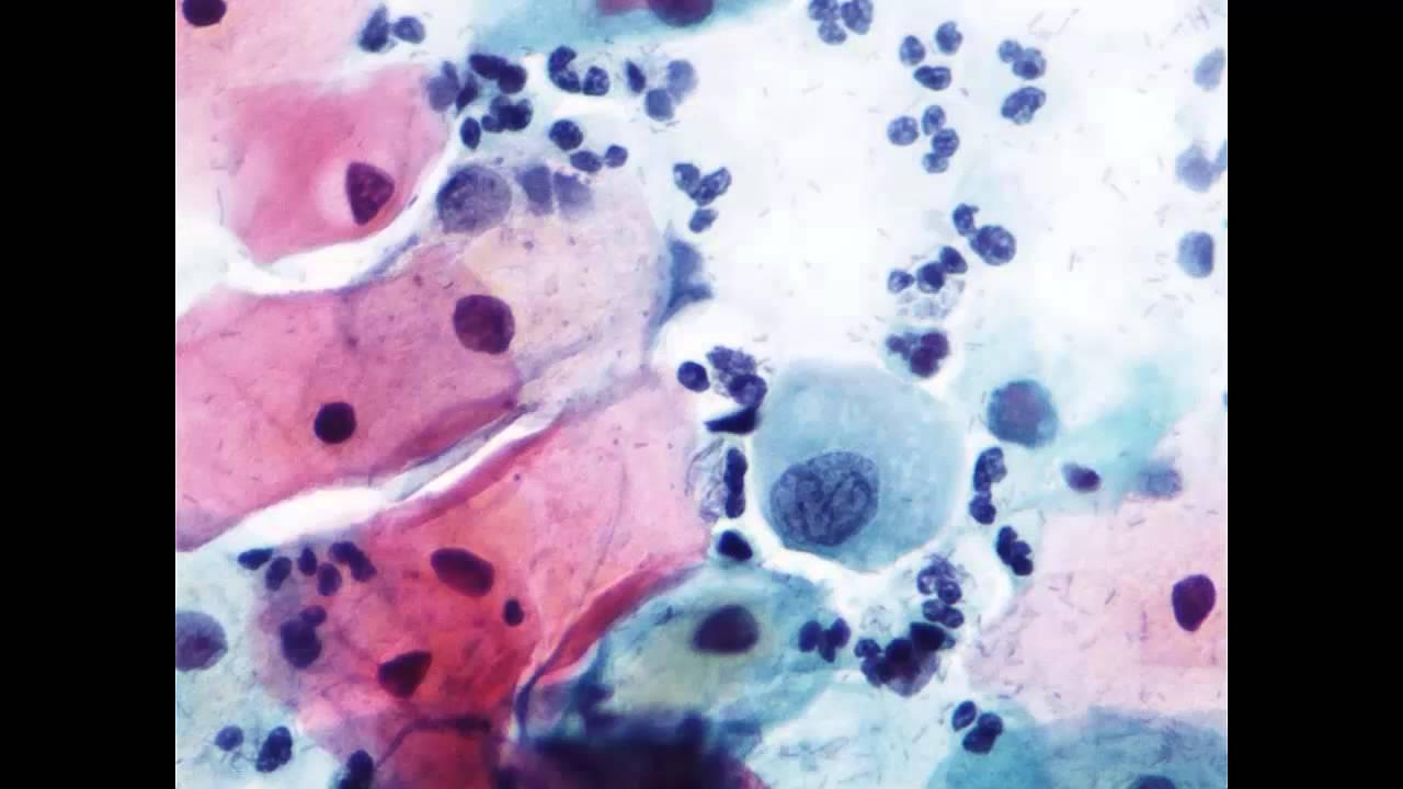 vph positivo citologia normal
