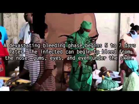 5 Terrifying Facts About Ebola