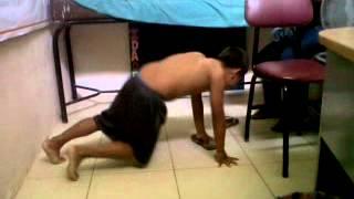 Distrofia muscular (maniobra de gowers) thumbnail