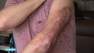 Frank werd 35 keer geopereerd na infectie vleesetende bacterie - RTL NIEUWS