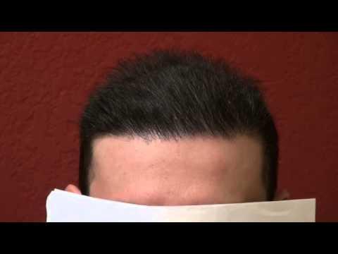 repair bad scalp micropigmentation tattoo hair transplant men hair loss dr p