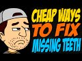 Cheap Ways to Fix Missing Teeth