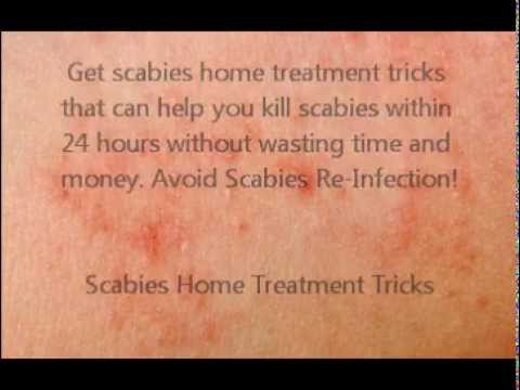 Kill Scabies Fast - Scabies Home Treatment Tricks - YouTube
