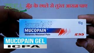 Mucopain Gel Full Review | How To Control Mouth Ulcer | मुँह के छाले का  ज़बरदस्त इलाज