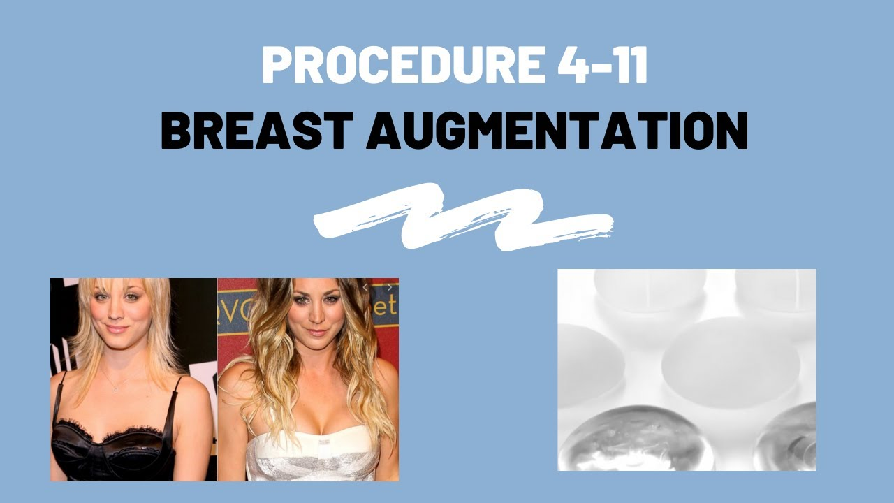 Breast Augmentation (Implants and Fat Transfer) Procedure 411