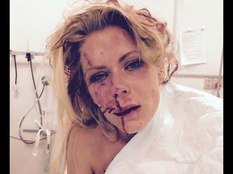 reife Frau verprügelt