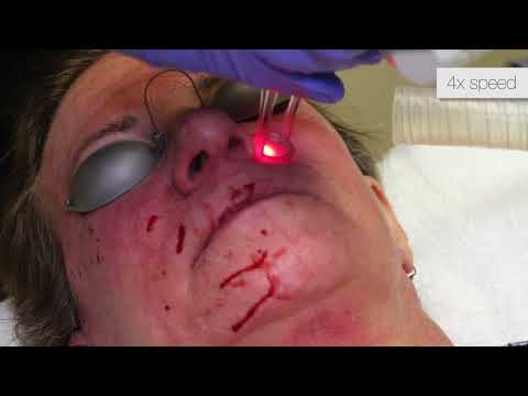 Total FX CO2 Laser Resurfacing - Full Face