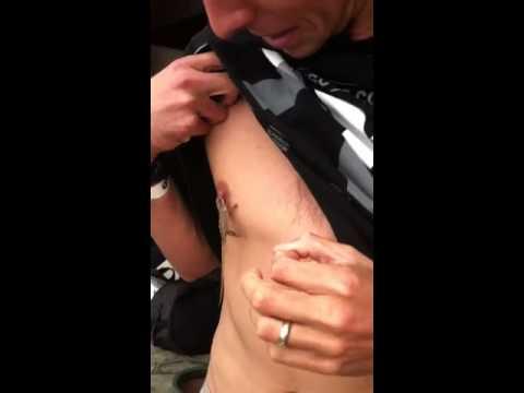 Biting White nipple girl