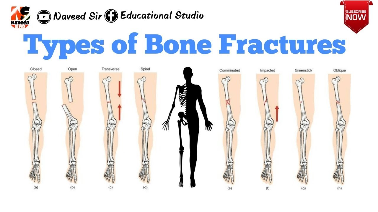 Types Of Bone Fractures Youtube