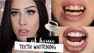 TEETH WHITENING AT HOME | For Coffee Lovers | GIVEAWAY