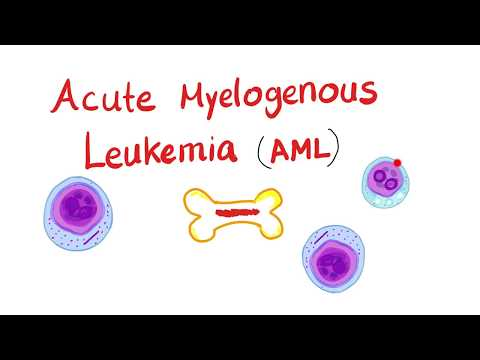 Acute Myelogenous Leukemia (AML)