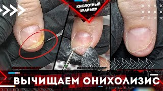Снова онихолизис ногтей Отслоение ногтя Подробно Белые пятна на ногтях зачищаем