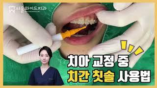 치아 교정 중 치간칫솔 하는 방법 [강동구 치과, 강동…