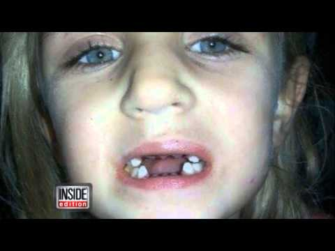 Stop Dental Abuse - Inside Edition (CBS) Covers the Dr. Schneider Case
