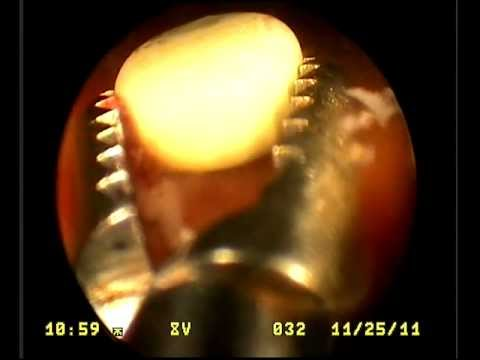 Full video transurethral cystoscopy remove stone from a dog