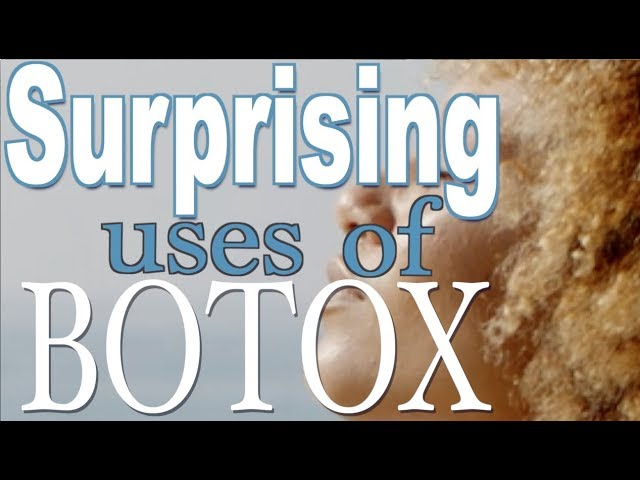 Surprising uses for Botox and Dysport