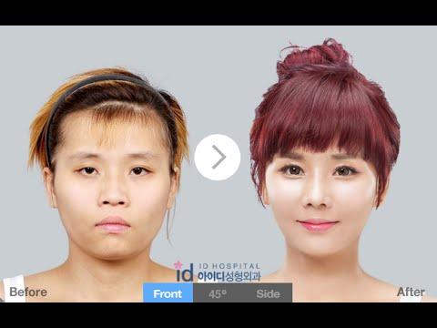 Korea Plastic Surgery Best Korean Clinics Two Jaw With Printer