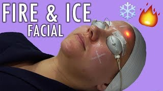 Fire & Ice Facial - Lasers & Cold Air Shot At Our Face!