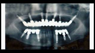 秋田インプラントセンター症例8 上顎-すべて人工歯、下顎-健康な歯を残す