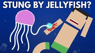 What Happens If You Get Stung By a Jellyfish?