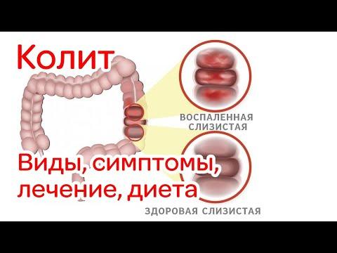 Колит кишечника - виды, симптомы, лечение, диета