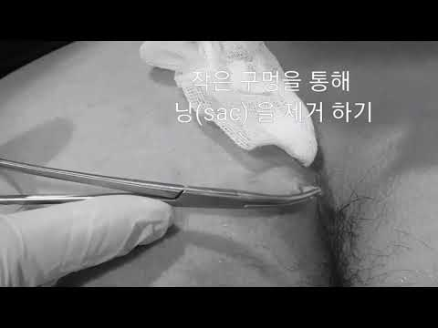 how to make a scar without pain